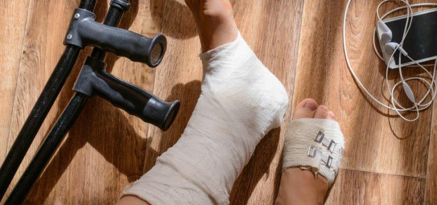 a-broken-leg-in-a-cast_t20_pxwZL1